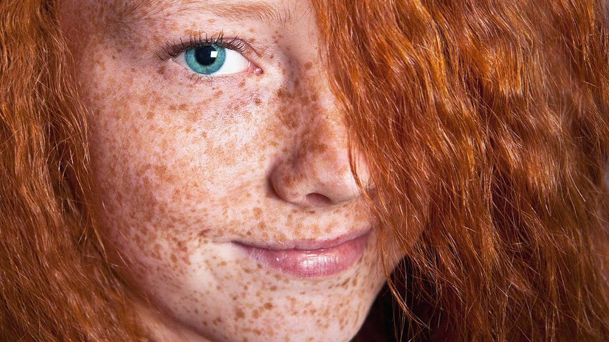 Eliminar manchas de la cara:...